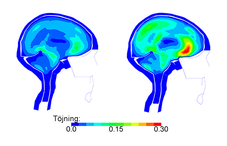 Représentation des lésions cérébrales lors d'un accident de vélo